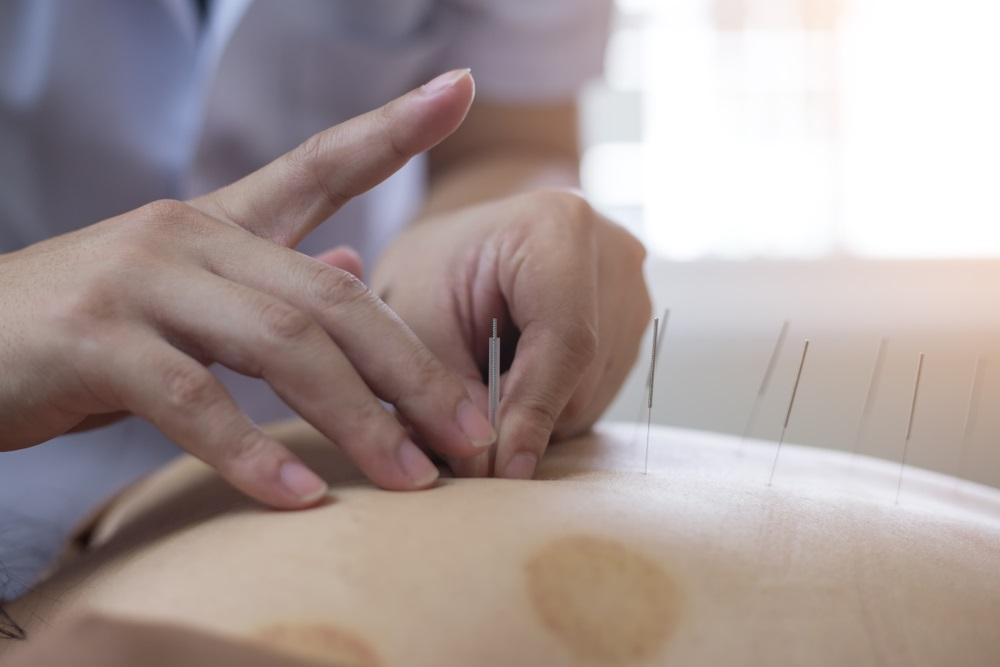 Acupuncture Pregnancy Induction Methods : Oakville ...